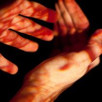 Увидеть во сне свою руку в крови